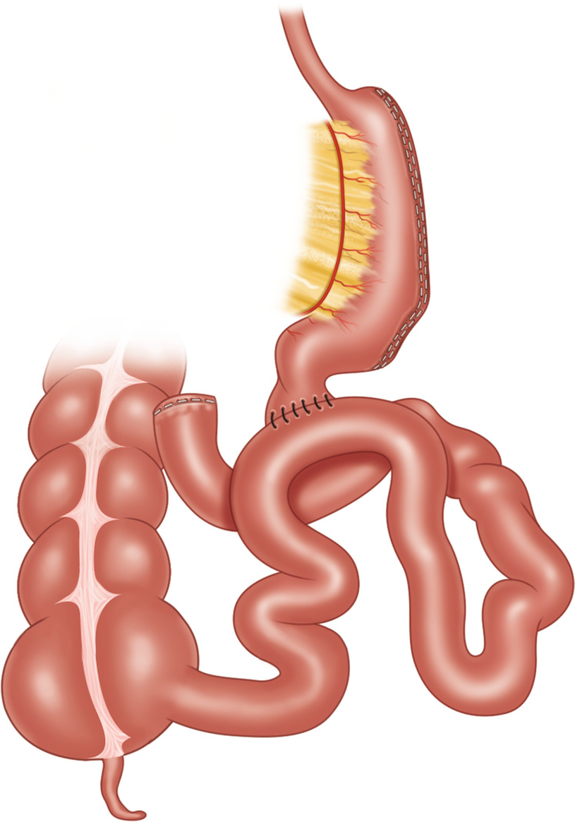 Single Anastomosis Duodenal-Ileal Bypass with Sleeve (SADI-S)